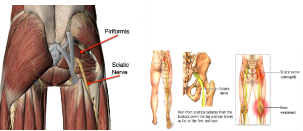 Pain from sciatica in details